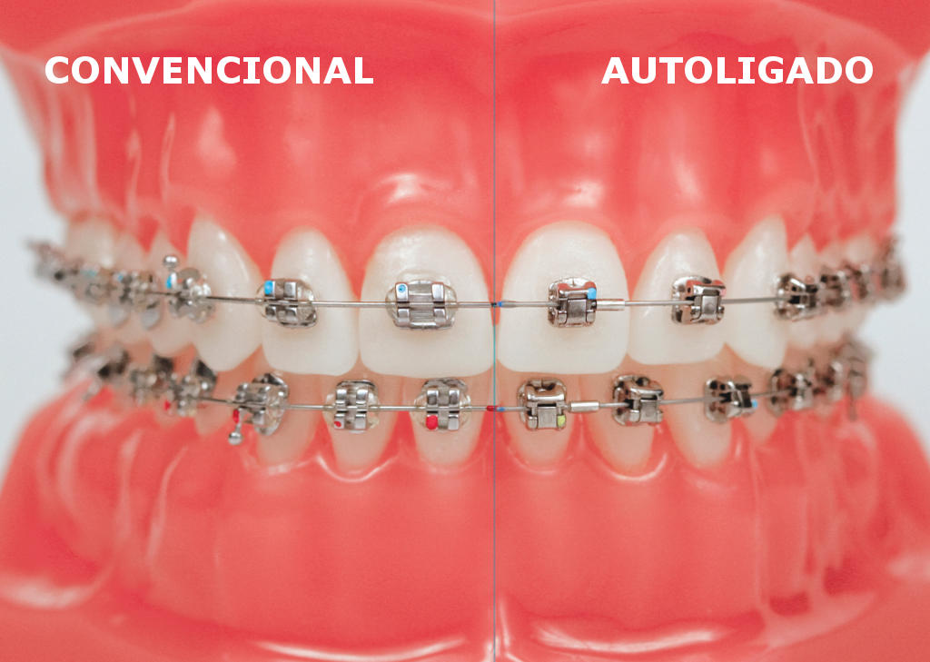 bracket-convencional-vs-autoligado